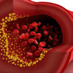 Best Natural Tips to Reduce Blood Cholesterol