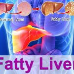 Best Natural Tips and Remedies for Fatty Liver