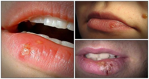Best Natural Tips to Treat Cold Sores