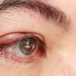 Best Natural Tips to Treat Stye Eye