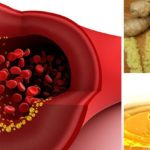 Best Natural Blood Thinner Foods