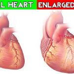 Best Natural Tips for Enlarged Heart