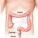 How to Prevent Colon Cancer Naturally