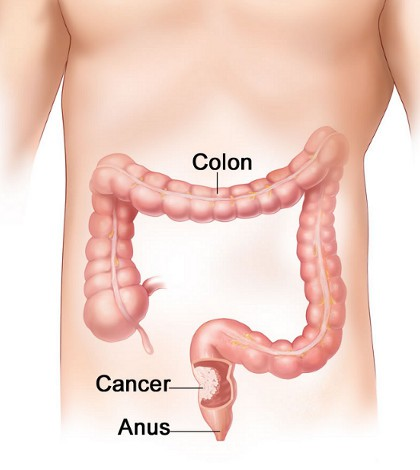 Best Tips To Prevent Colon Cancer Naturally Best Health