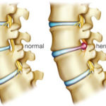 Best Natural Tips to Treat Slipped Disc