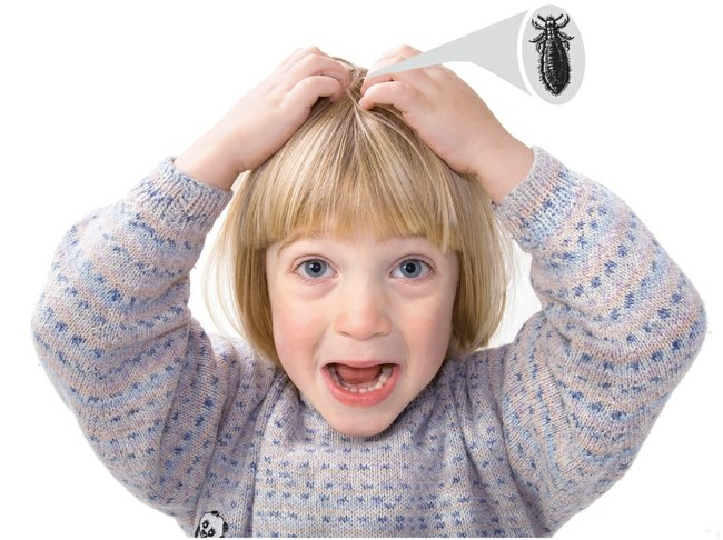 Best Natural Tips To Get Rid Of Head Lice and Nits