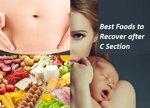 Best Foods to Recover-after c-section