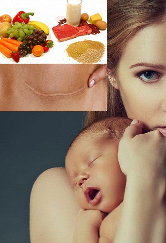 Best Natural Foods to Recover after Cesarean Delivery