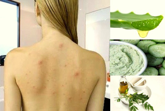 Best Natural Tips To Remove Body Acne Best Health And Beauty Tips
