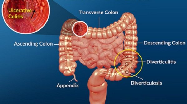 foods to heal ulcerative colitis