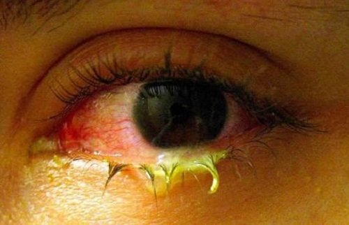 pink eyes with yellow discharge